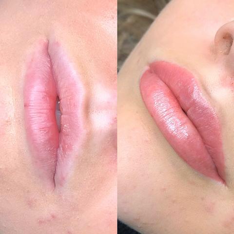 lippen voor na