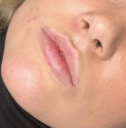 lippigmentatie voor